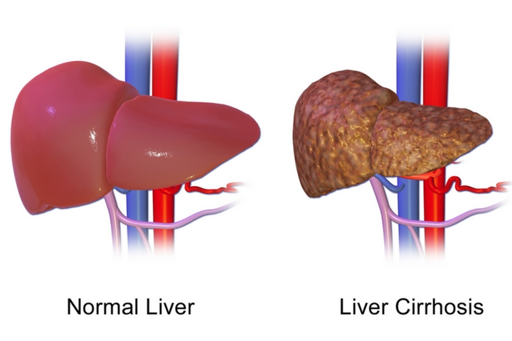 What Are The Reasons For Liver Damage