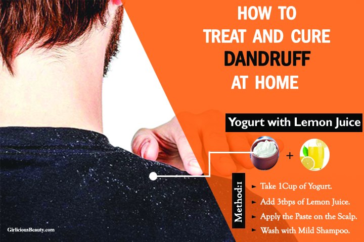 How to Remove Dandruff Permanently – Best Home Remedies.