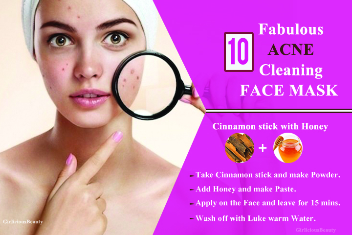 10 Fabulous Face Masks For Acne And Pimple Free Skin