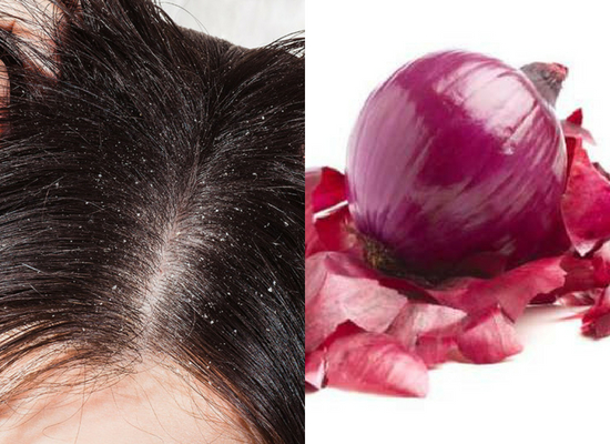 Prevents dry scalp and dandruff