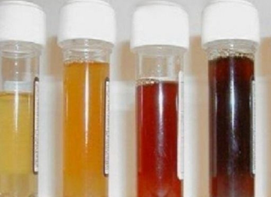 Change of urine color