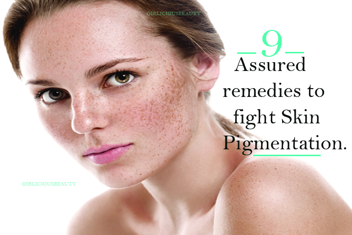 9 Assured Remedies To Get Rid Of Skin Pigmentation