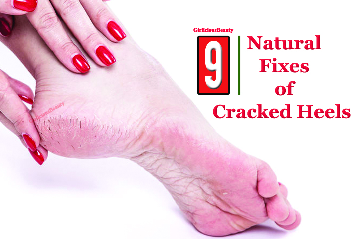 9 Natural Fixes Of Cracked Heels – Get Smooth Feet
