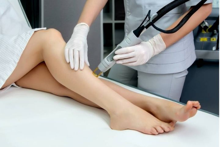Laser hair removal – Benefits & Viability