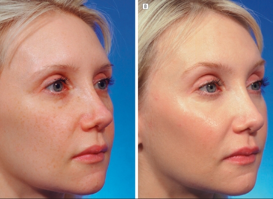 Fractional laser treatment