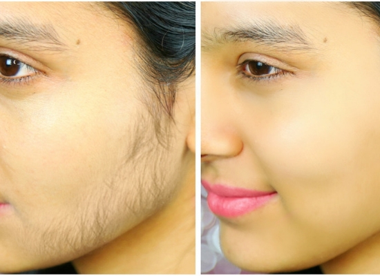 Unwanted hair on skin face mask