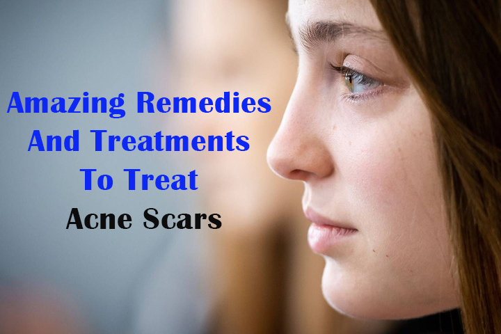 Amazing Remedies And Treatments To Treat Acne Scars
