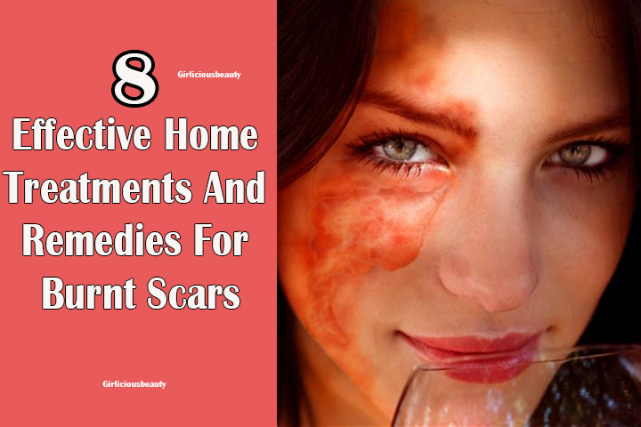 8 Effective Home Treatments And Remedies For Burn Scars