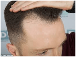 Things to know about Hair Transplant in Gurgaon!