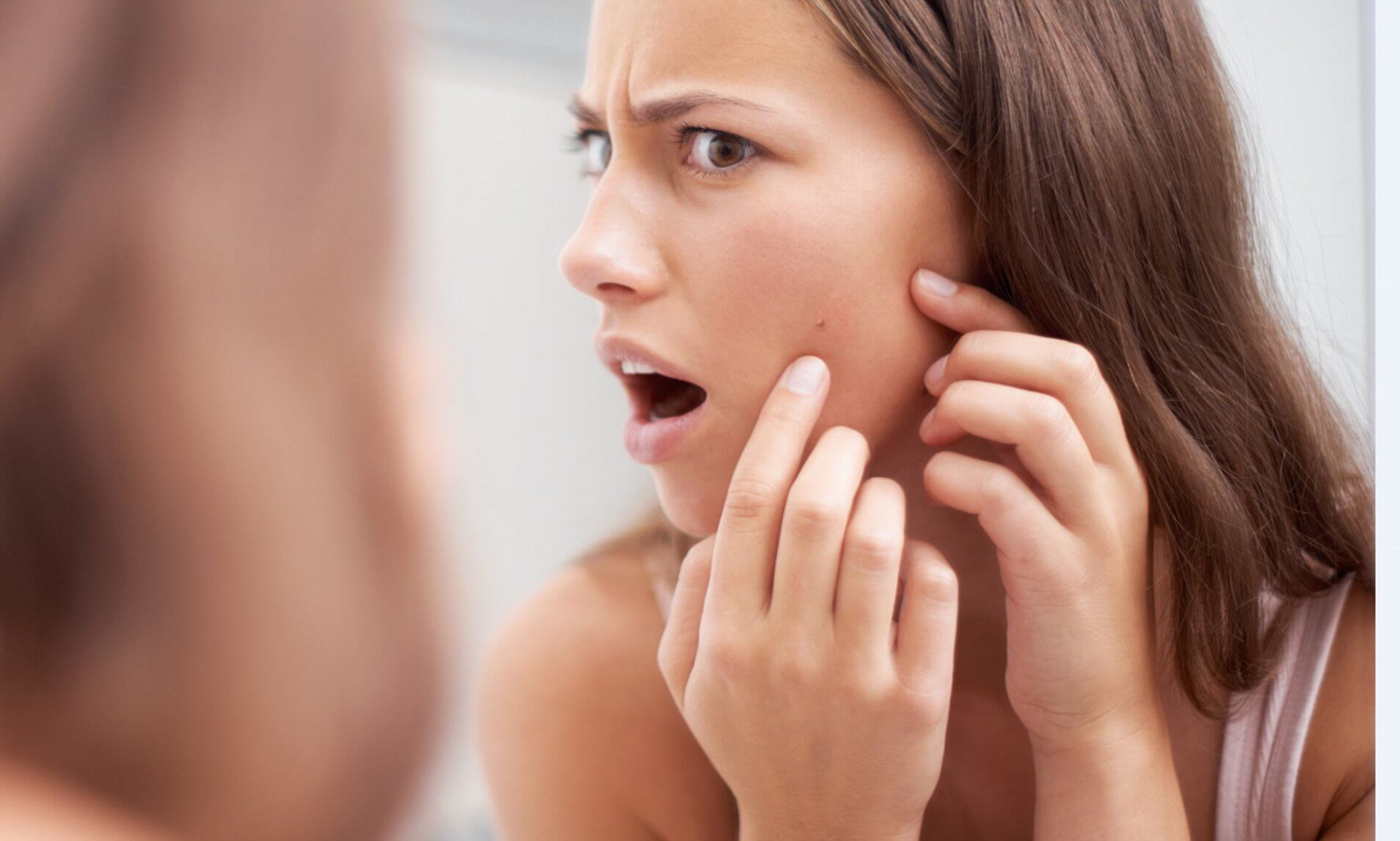 10 Surprising Factors That May Trigger an Acne Outbreak