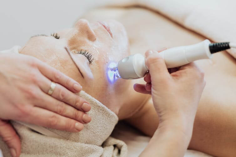 Laser Treatments in Melbourne: Things People Need to Know
