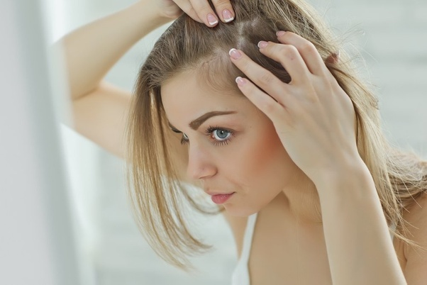 What to Know About Treating Alopecia Areata ?>