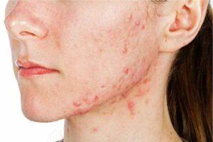 acne prone skin care