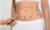 BodyTite Remains the Gold Standard of Liposuction After 10 Years