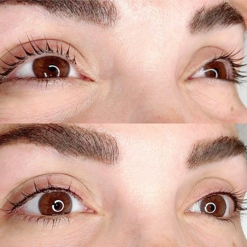 Eyelash line